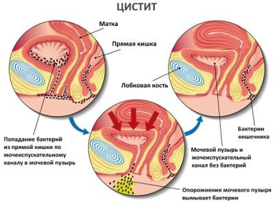valus urineerida