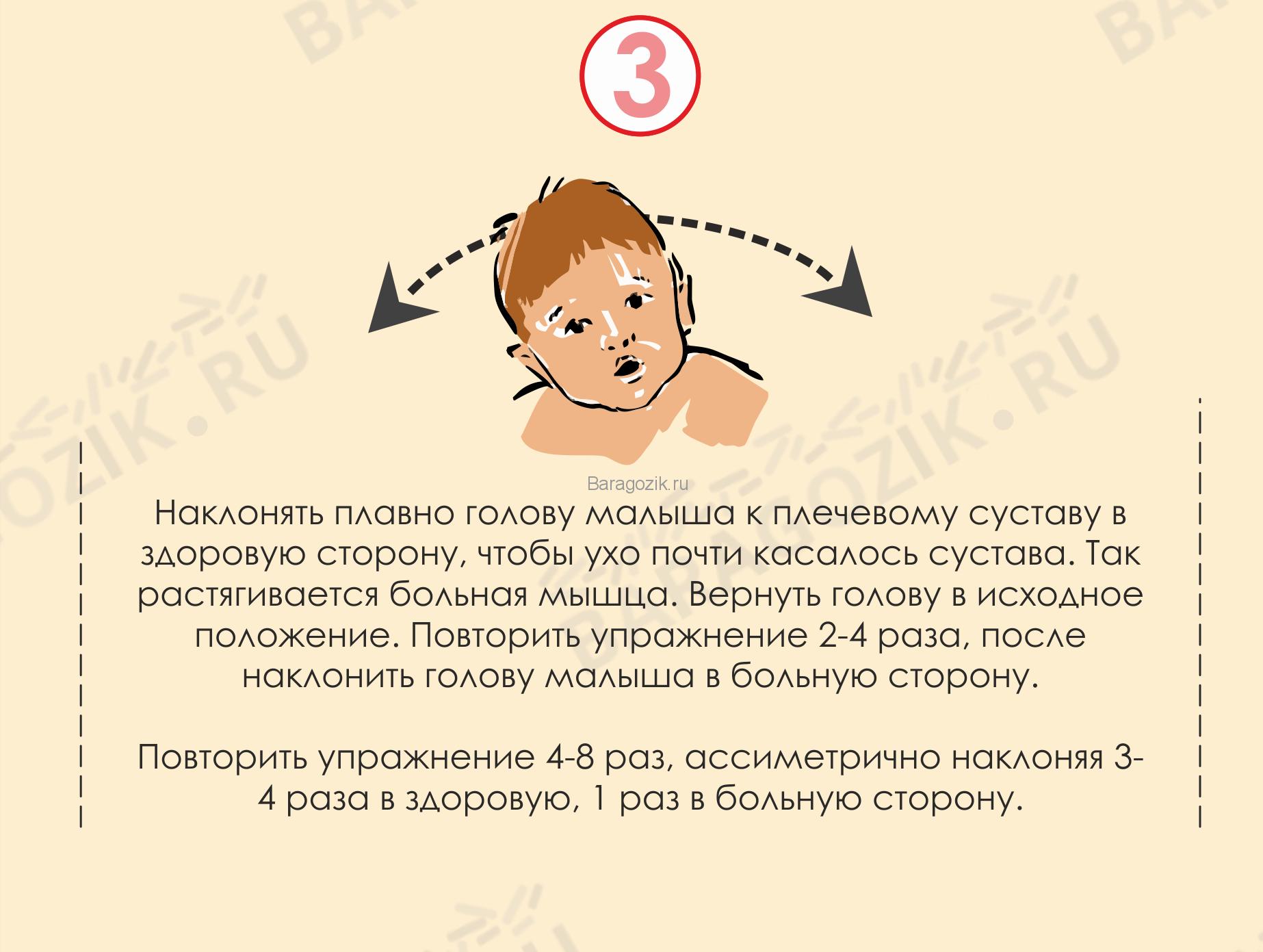 У младенца голова наклонена в одну сторону