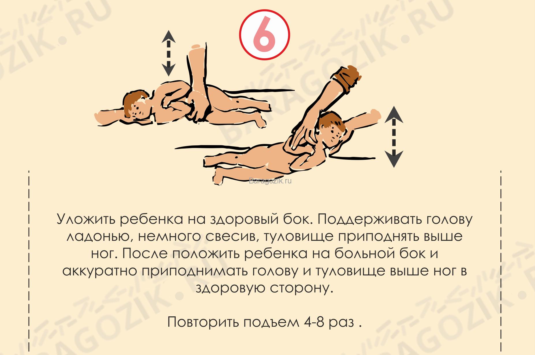 Кривошея у ребенка 3 месяца как укладывать